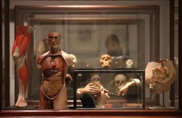 赫斯特的解剖学模型和人类标本