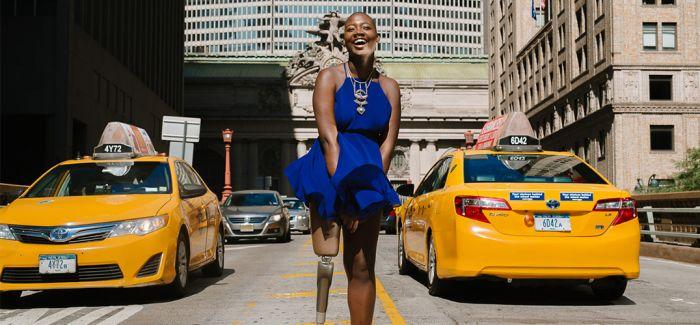 截肢女孩成为时尚博主  只有自己能决定自己的价值