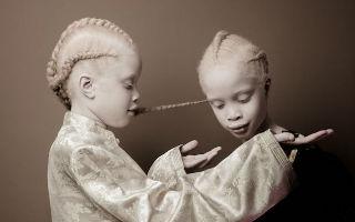 镜头前的珍贵花朵!白化症双胞胎绽放罕见的美丽
