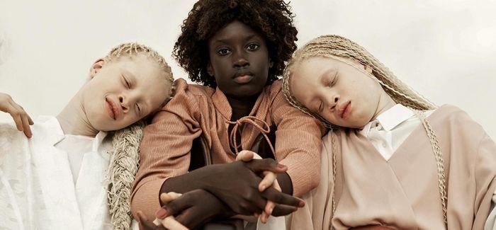 拍摄白化病姐妹花的摄影师:每个人都有自己独特之美