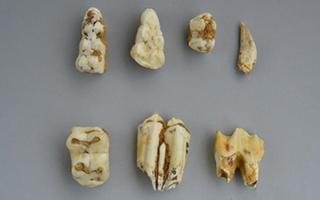 隆安娅怀洞遗址发现距今约1.6万年前的人类头骨化石